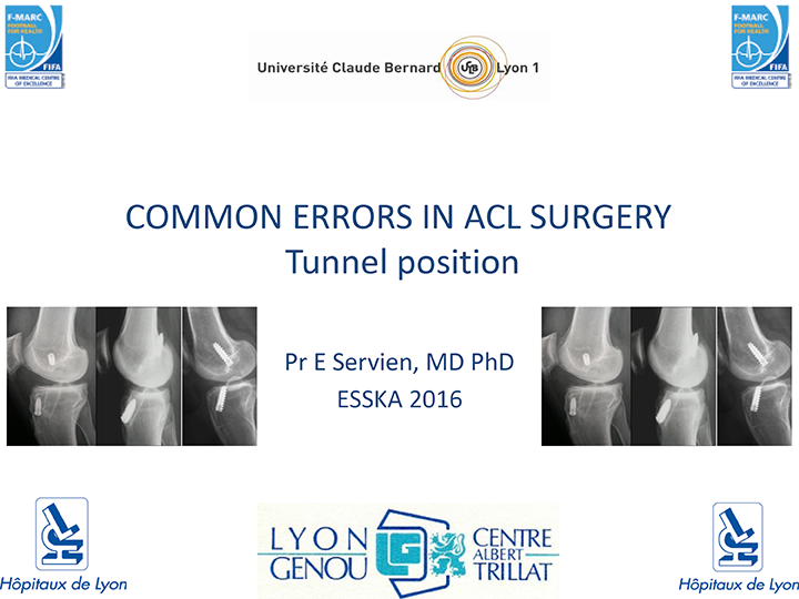 ICL-common-error-in-acl-surgery